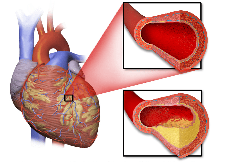 5 Heart Conditions You Should Know About