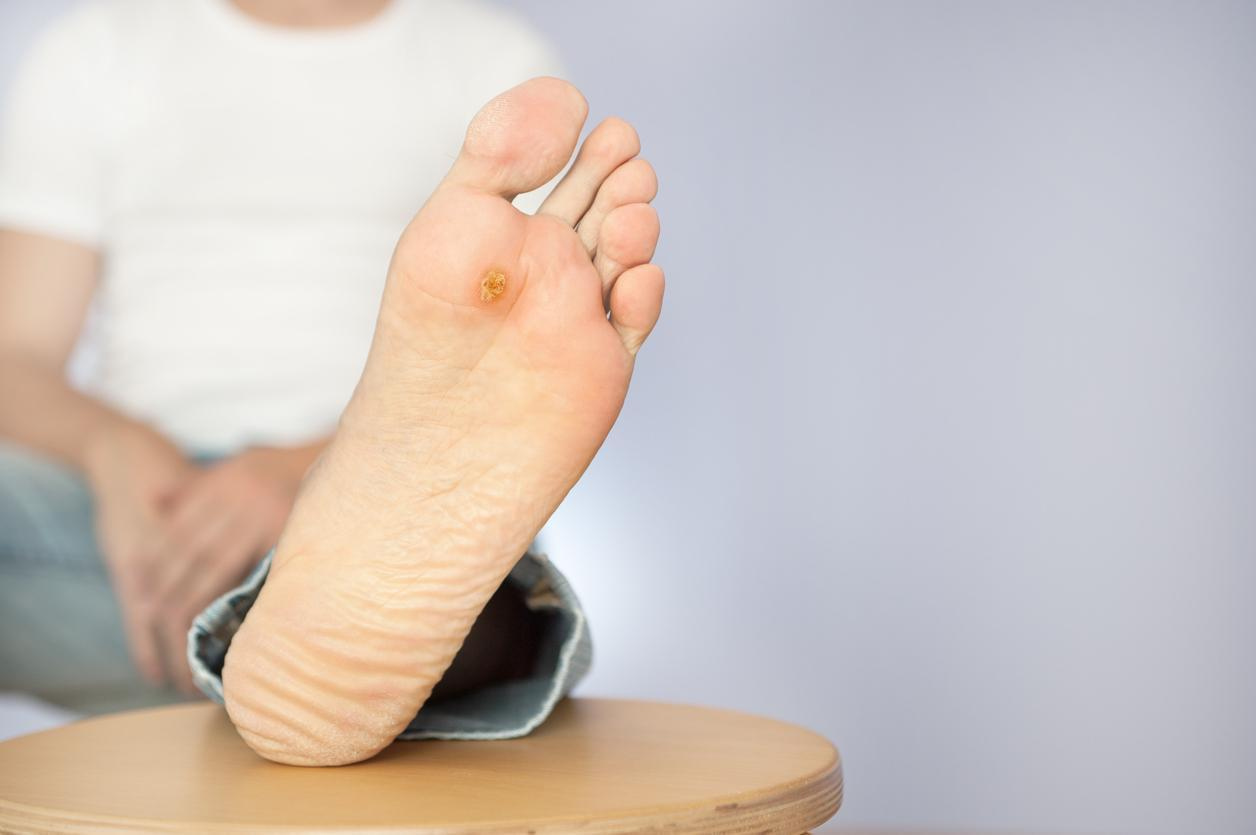 foot ulcers - causes