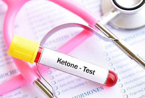 Ketoacidosis diagnosis