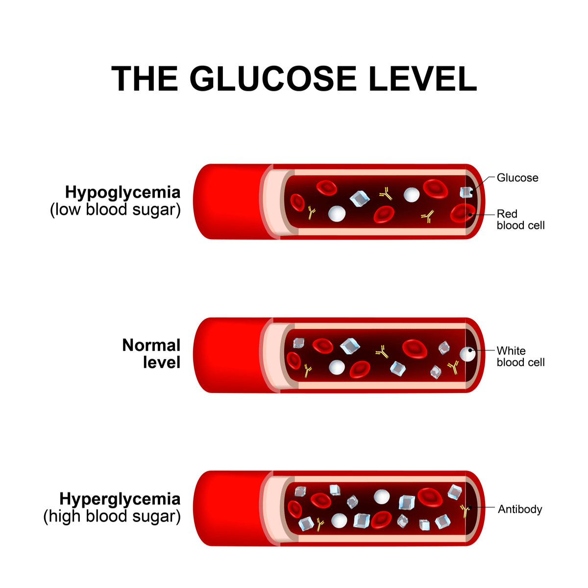 chart of normal blood glucose levels