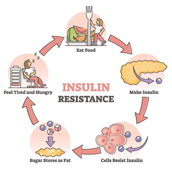 Know About Insulin Resistance to Prevent Diabetes Type-2