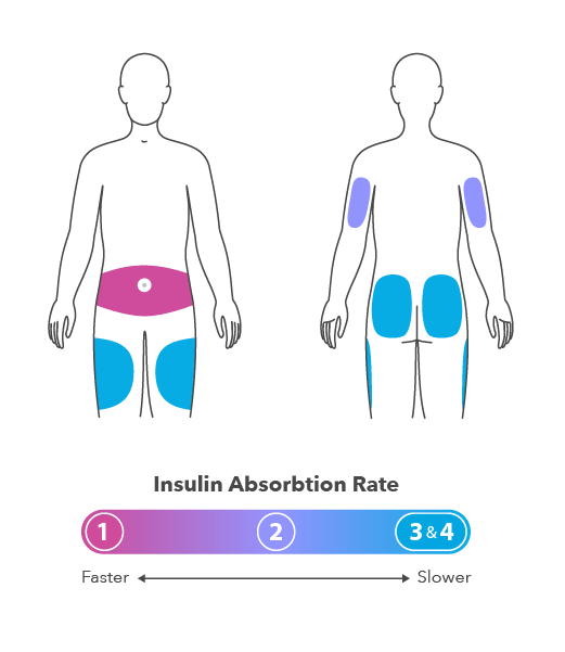 insulin injection uses
