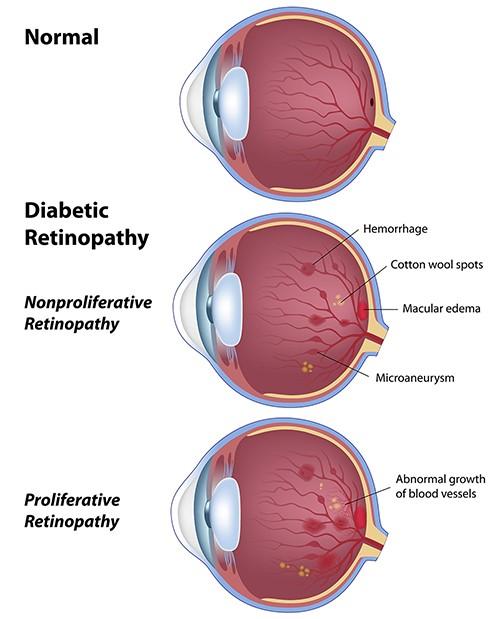 eyes problems due to diabetes