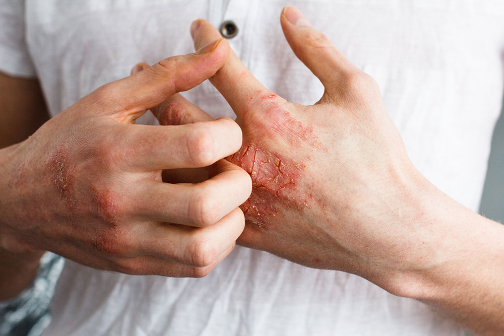 Diabetes and Skin Problems: Know About Diabetic Skin Disorder Causes, Types, Prevention