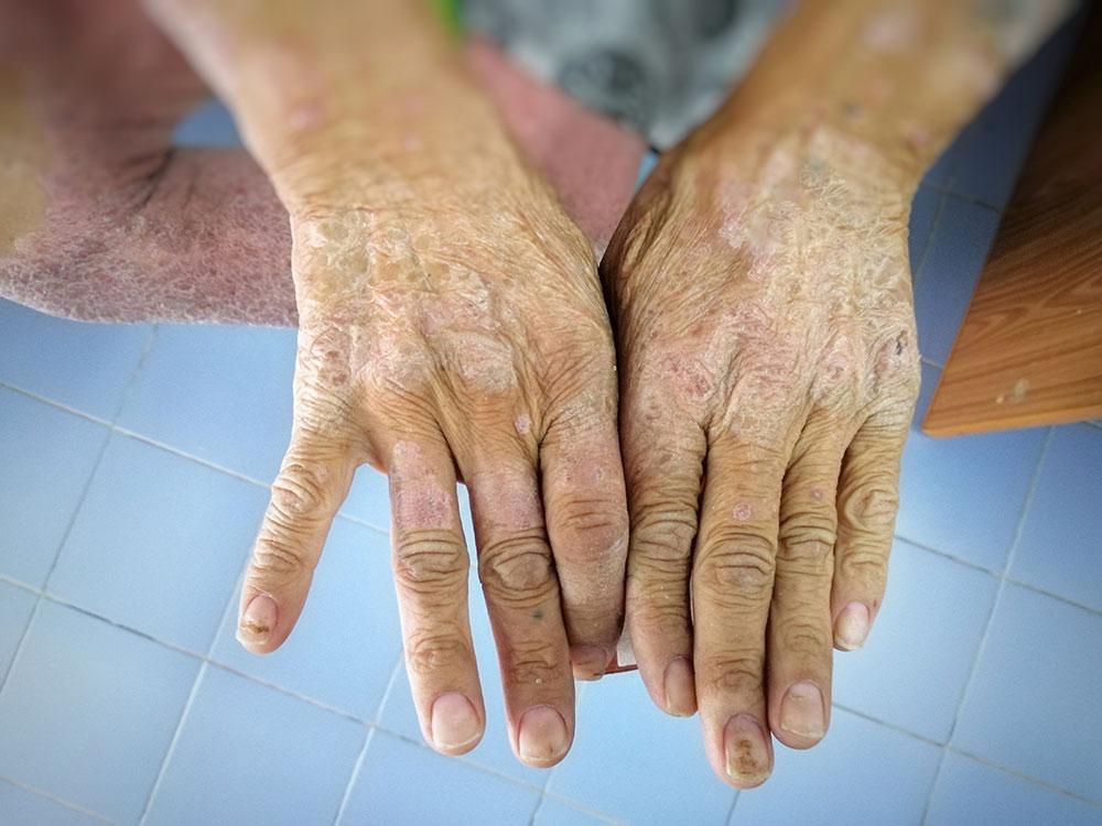 dermatitis diabetes mellitus