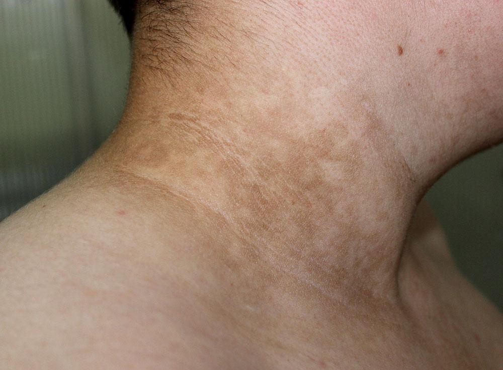 diabetes and neck rash