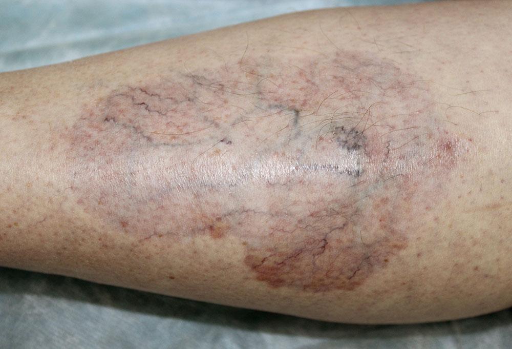 diabetes and skin disorders