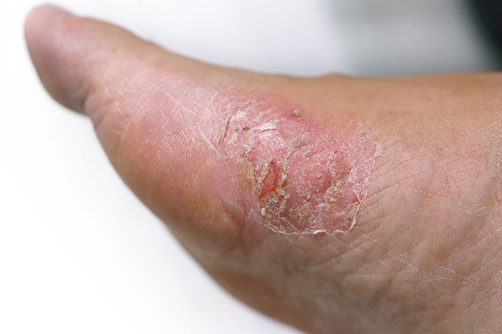 diabetes and skin problems