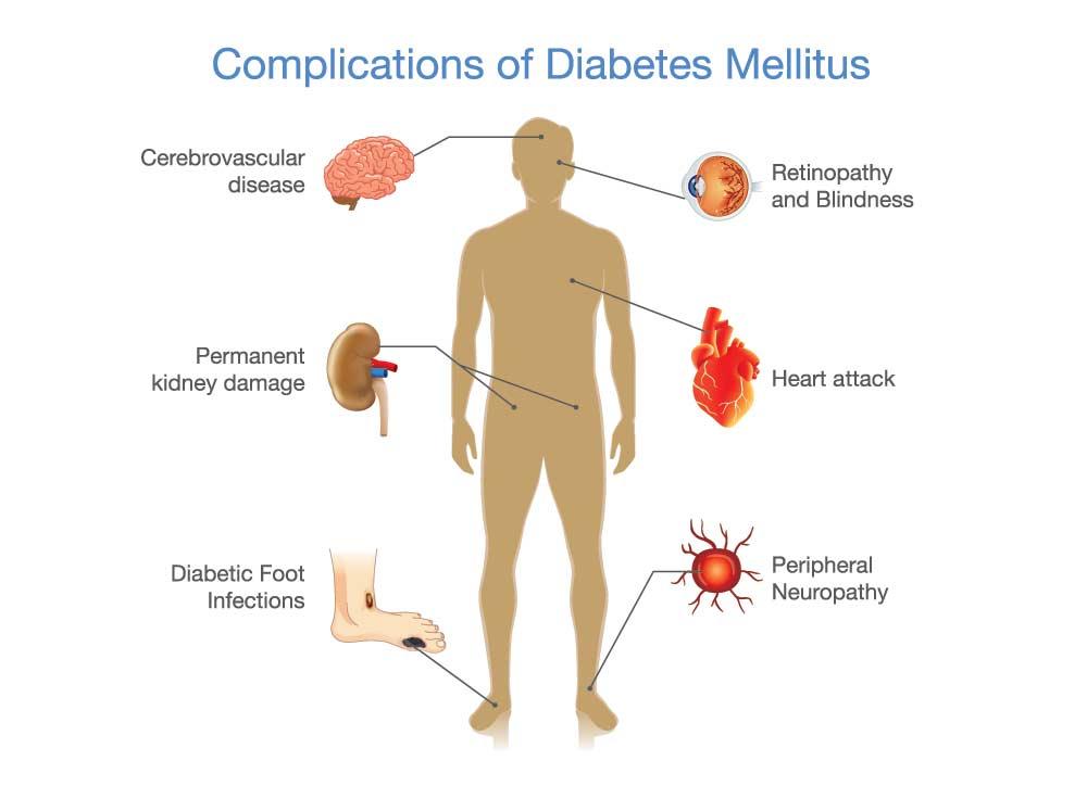 Long Term Complications of Type 2 Diabetes Mellitus